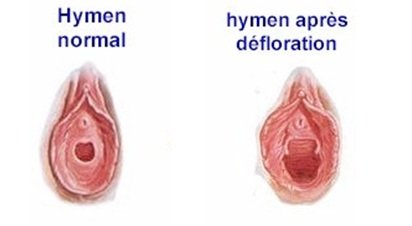 reconstruction hymen tunisie