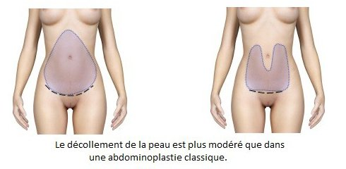 technique abdominoplastie tunisie
