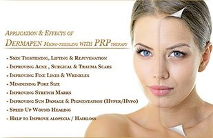 injection prp visage